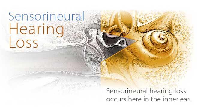 کاهش شنوایی حسی عصبی